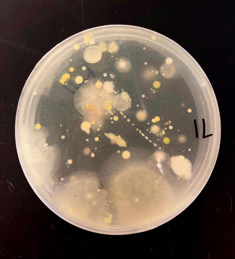 Pictured+above+is+the+Petri+dish+one+weekend+after+Tidball+and+Hartford+swabbed+the+keyboard.+Some+colonies+have+been+identified+as+pink+yeast+and+staphylococcus.